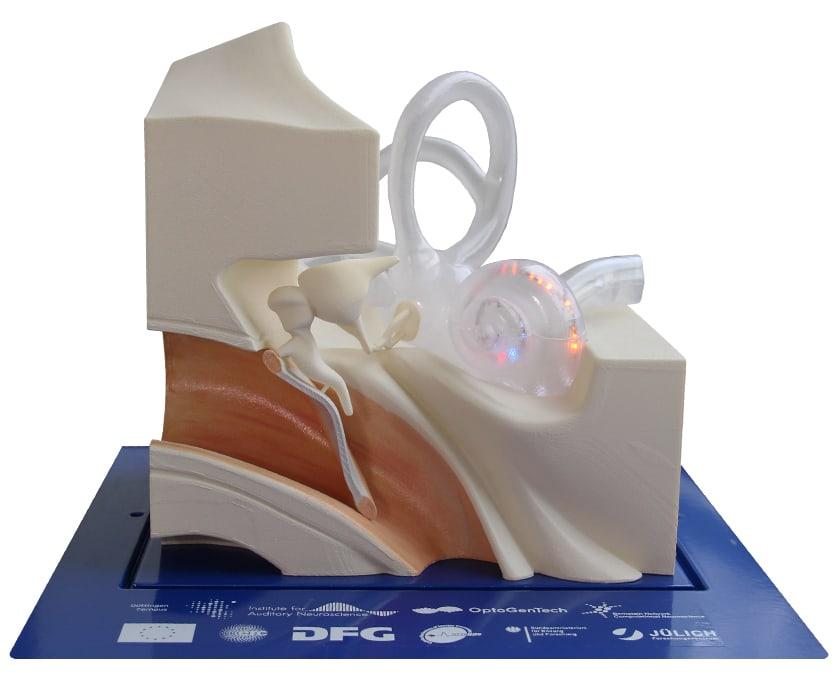 3D-Druck optogenetische Cochlea-Implantate